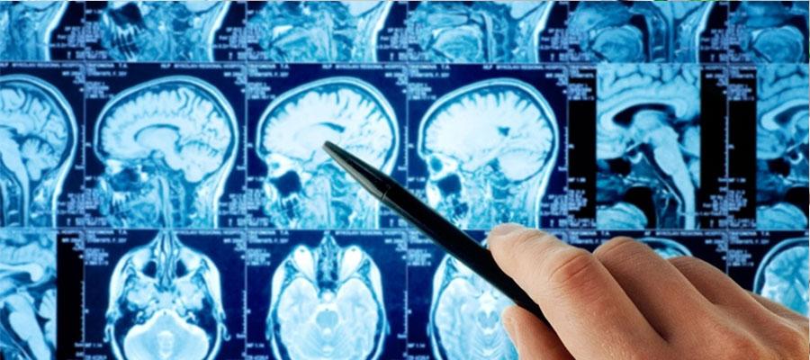 Beyin ve Sinir Cerrahisi (Nöroşirürji)